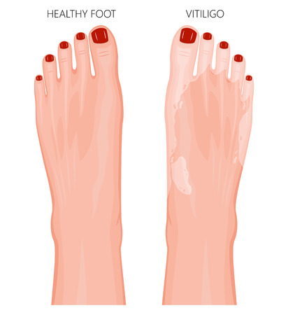 Vector illustration of a healthy foot with red toenails and a foot with vitiligo, loss of skin color. Dorsal view.  For advertising, medical publications. EPS 8. Stock Vector - 91115057