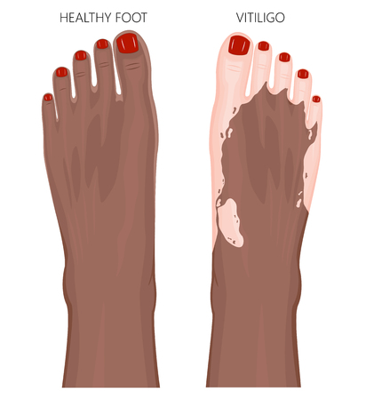 Vector illustration of a healthy Afro American foot with red toenails and a foot with vitiligo, loss of skin color. Dorsal view.  For advertising, medical publications. EPS 8.