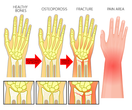Vector illustration of a healthy human arm, with osteoporotic injury, with ulnar and radius bones fractures in spongy part and area of pain. EPS 10 Vectores