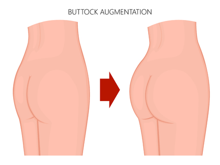 Vector illustration of a woman body. European; Asian female naked buttocks before and after augmentation. For advertising of cosmetic procedures; clinic of plastic surgery; medical publications. EPS 8