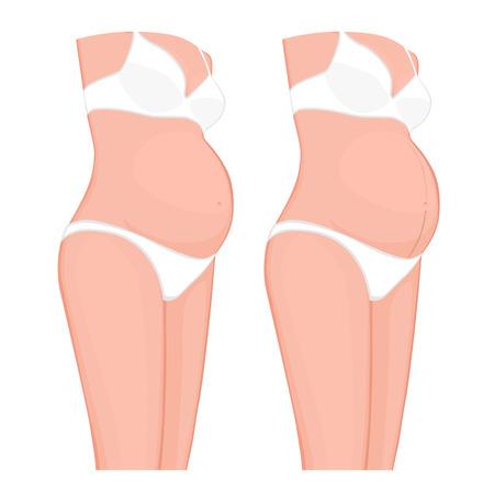 Ilustração vetorial Problema corporal. Linha de gravidez ou Linea Nigra na barriga de mulheres grávidas Europeia, asiática. Para publicidade, publicações médicas, uso em embalagens de medicamentos, cremes. EPS 8 Foto de archivo - 91181925