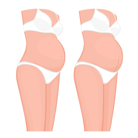 Vector illustration. Body problem. Pregnancy Line or Linea Nigra on European, Asian pregnant women belly. For advertising, medical publications, use on package of medicinal products, creams. EPS 8.