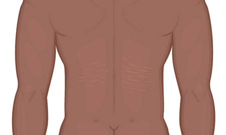 Vector illustration. Man body problem. Stretch marks on African American Indian male back. For advertising, medical publications, use on package of medicinal products and cream. EPS 8 Ilustracja