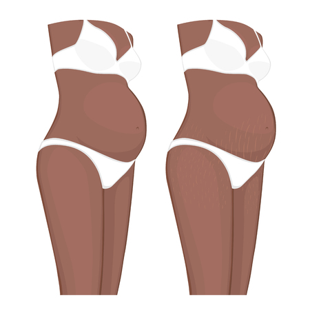 Vector illustration Human body problem. Stretch marks on  African American Indian pregnant women belly, legs. For advertising, medical publications, use on package of medicinal products, creams. EPS 8 Vettoriali