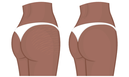 Woman body problem Stretch marks on African American Indian female thighs and lower back. For advertising, medical publications, use on package of medicinal products and creams