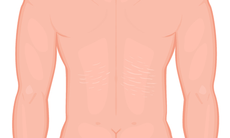 Man body problem stretch marks on European, Asian male back. For plastic surgery advertising, medical publications, use on package of medicinal products and creams. Illustration