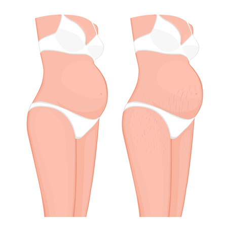Vector illustration of human body problem. Stretch marks on European, Asian pregnant women belly and legs. For advertising, medical publications, use on package of medicinal products, creams. EPS 8.  イラスト・ベクター素材