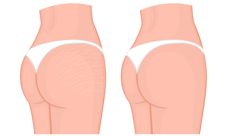 Vector illustration of a woman body problem. Stretch marks on European, Asian female thighs and lower back. For advertising, medical publications, use on package of medicinal products, creams. EPS 8.