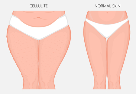 Vector illustration of woman body problem. Cellulitis on European, Asian female thighs, weight loss and normal skin. Vectores