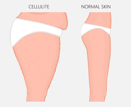 Vector illustration of woman body problem. Cellulitis on European, Asian female thighs, weight loss and normal skin. Ilustração