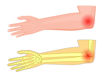 Vector illustration of a human elbow joint with a pain or injury.
