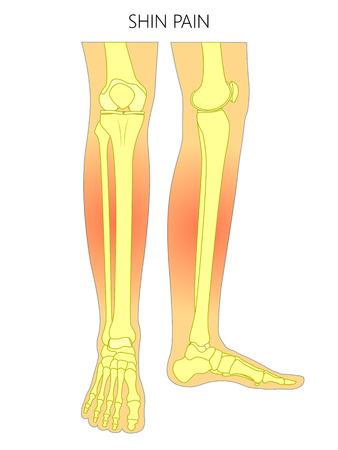 Ilustración vectorial de huesos de una pierna humana (vista anterior y medial) con dolor de espinilla. Ilustración vectorial para publicidad, publicaciones médicas (atención médica). EPS 10 Ilustración de vector