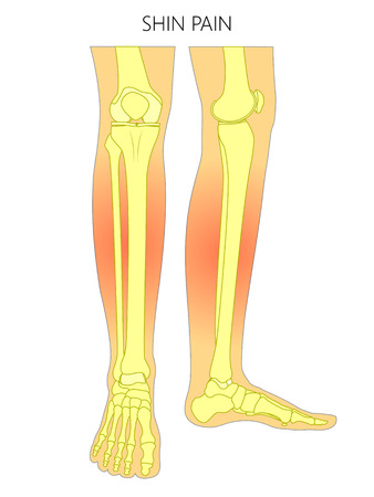 Vector illustration of bones of a human legs (anterior and medial view) with shin pain. Vector illustration for advertising, medical (health care) publications. EPS 10