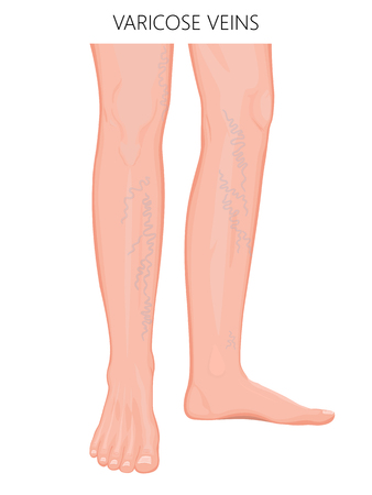 Vector illustration of a human leg with varicose veins injury. For advertising of medical procedures of varicose treatment and medical publications.
