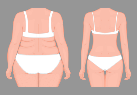 Vector illustration of woman body problem fat belly  weight loss to normal slim figure.
