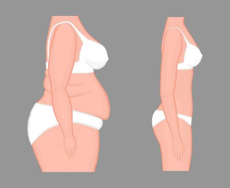 Vector la ilustración de la pérdida de peso gorda del problema del cuerpo de la mujer a la figura delgada normal. Foto de archivo - 92952241