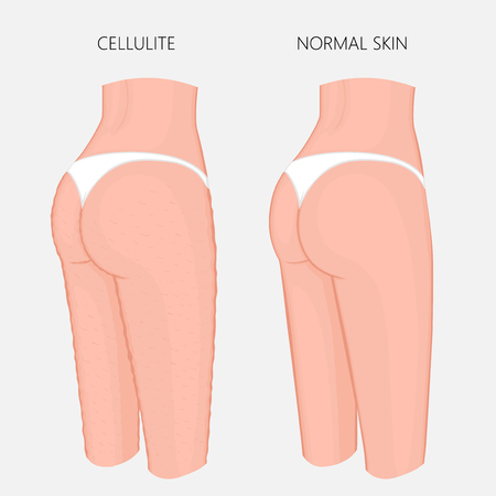 Vector illustration of woman body problem. Cellulitis on European, Asian female thighs, weight loss and normal skin. Illustration