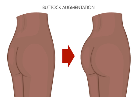 Vector illustration Woman body. African American Indian female naked buttocks before, after augmentation. For advertising of cosmetic procedures, clinic of plastic surgery, medical publications.