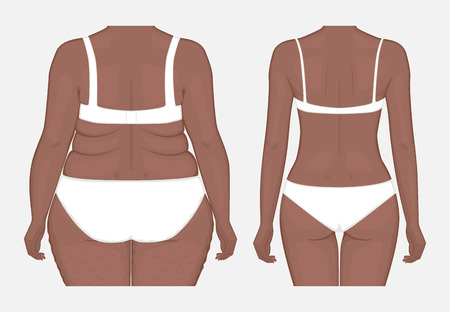 Vector illustration. Woman body problem obese, in African American female, weight loss to normal slim figure. Back view. Advertising of cosmetic plastic procedures,  diet, medical publications. EPS 8.
