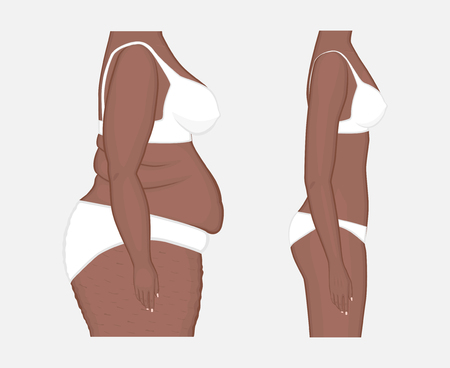 Vector illustration. Woman body problem obese, in African American female, weight loss to normal slim figure. Side view. Advertising of cosmetic plastic procedures,  diet, medical publications. EPS 8. Ilustração