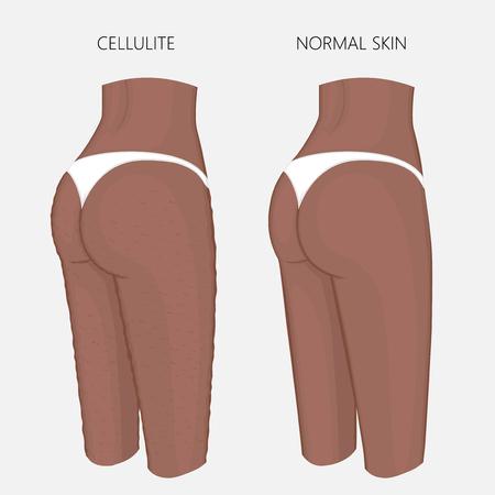 Ilustración de vector de problema de cuerpo de mujer. Celulitis en los muslos femeninos afroamericanos, pérdida de peso y piel normal. Para publicidad de procedimientos anticelulíticos, publicaciones médicas, cremas. EPS 8. Foto de archivo - 93019437