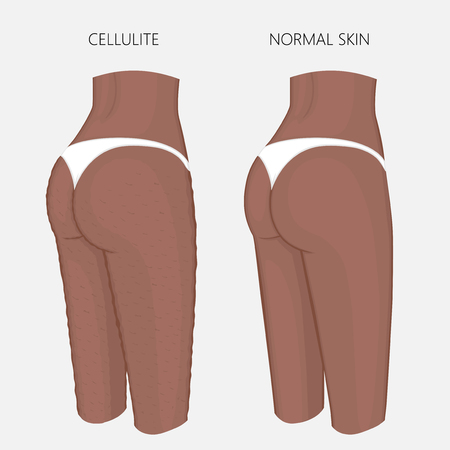 Vector illustration of woman body problem. Cellulitis on African American female thighs, weight loss and normal skin. For advertising of anti cellulite procedures, medical publications, creams. EPS 8. Ilustração