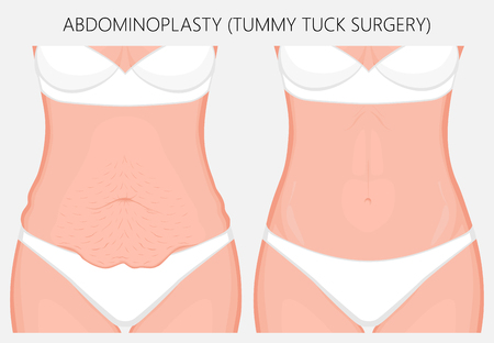 Realistic Vector illustration. Abdominoplasty, tummy tuck plastic surgery in woman. Front view. For advertising of cosmetic plastic procedures, stomach shunting, diet; for medical publications. EPS 8.