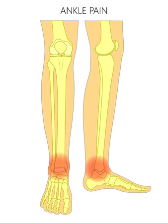 Vector illustration of bones of a human legs (anterior and medial view) with ankle joint pain or injury. For advertising, medical (health care) publications. EPS 10. Ilustracja