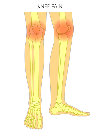 Vector illustration of bones of a human legs (anterior and medial view) with knee joint pain or injury. For advertising, medical (health care) publications. EPS 10. Illustration