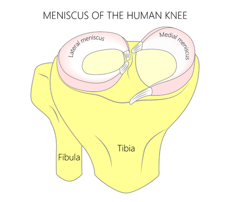 Vector illustration. Anatomy of a proximal surface of the tibia with meniscus in the healthy human knee joint. Front view of a human knee. Vettoriali
