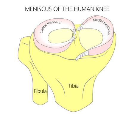 Ilustración vectorial Anatomía de una superficie proximal de la tibia con menisco en la articulación de la rodilla humana sana. Vista frontal de una rodilla humana.
