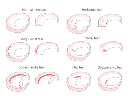 Illustration vectorielle. Anatomie d'un ménisque dans l'articulation du genou humain en bonne santé. Types de déchirure méniscale avec coupe transversale des ménisques. Vecteurs