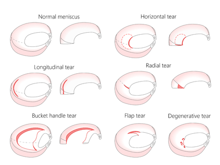 Vector illustration. Anatomy of a meniscus in the healthy human knee joint. Types of meniscal tear with cross section of the menisci. Illustration
