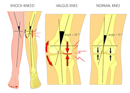 Vector illustration diagram. Shapes of human legs: Normal and curved legs 版權商用圖片 - 96821011