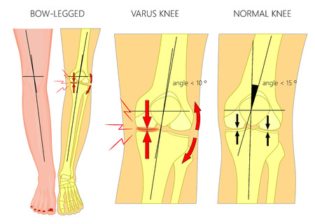 Vector illustration diagram. Shapes of human legs: Normal and curved legs