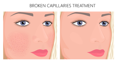 Vector illustration. Broken capillaries on face skin (cheeks, nose) before, after treatment. For advertising of medicinal, pharmacy products, cream, cosmetic procedures, medical publications. EPS 10 Vectores