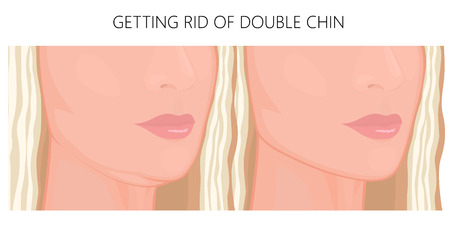 Vector illustration. Double chin on face in half turn before, after treatment. Close up view. For packaging of medicinal, pharmacy products, cream, lotion, cosmetic procedures advertising. EPS 10.