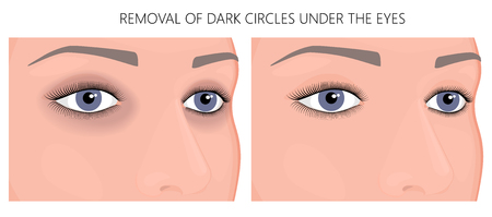 Vector illustration. Female eyes with dark circles around the eyes and without dark circles. For advertising funds for the treatment of this problem and medical publications about it. Vector Illustration