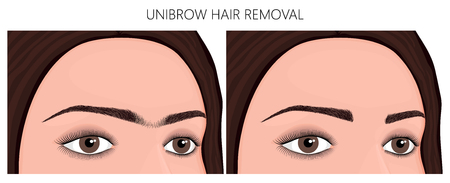 Vector illustration. Unibrow on womans face before, after excess hair remove. Close up view. For advertising and beauty publications.
