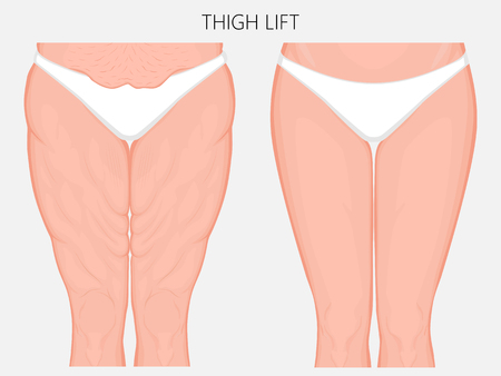 Vector illustration of a human body problem - fatty thighs and sagging skin correction before and after plastic thigh lift surgery. Front view. For advertising and medical publications. EPS 10. Vectores