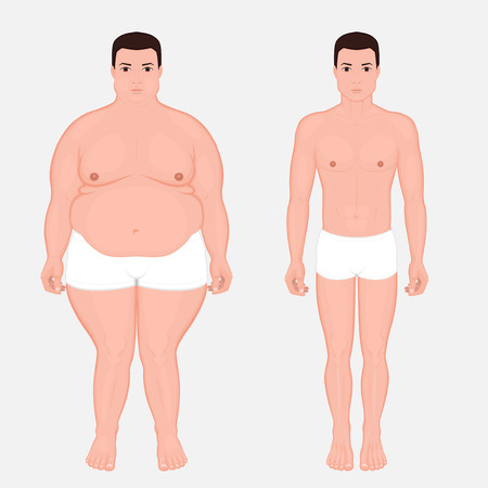 Vector illustration body weight loss in a European man from obesity to normal. Front view. For advertising of cosmetic plastic procedures, stomach shunting, diet; medical publications. EPS 10.
