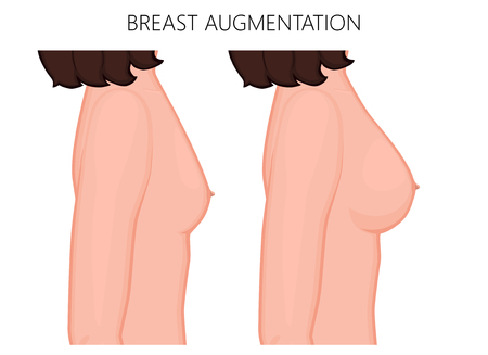 Vector illustration of breast augmentation before and after plastic surgery. Side view of the woman breast. For advertising and medical publications. EPS 10.