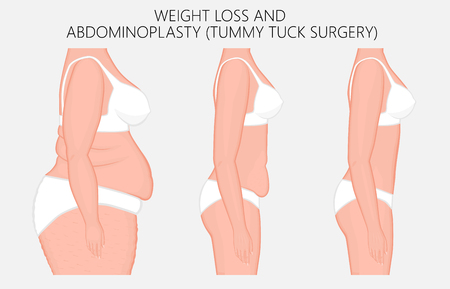 Vector illustration. Weight loss, abdominoplasty, tummy tuck plastic surgery in woman. Side view. For advertising of cosmetic plastic procedures, stomach shunting, diet; medical publications.