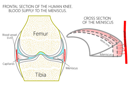 Vector illustration. Frontal section of a healthy human knee, blood supply of the meniscus (red, red-white and white zones). For advertising, medical publications.
