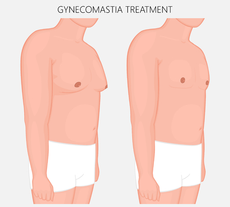 Vector illustration of gynecomastia in male before and after treatment. Man chest at half-turn (front and side view). For advertising of cosmetic plastic procedures, diet, medical publications. EPS 10