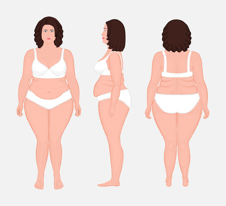 Vector illustration. Front, back, side view of naked European woman in full growth in underwear. Advertising of cosmetic plastic procedures, stomach shunting, bypass, diet, medical publications EPS 10