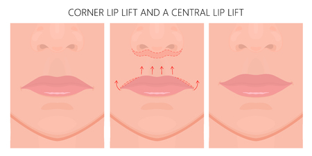 Vector illustration. Subnasal lip lift with Lateral Vermilion Advancements on face before, after procedure. Close up view. For advertising of medicinal, cosmetic, plastic surgery, procedures. EPS 10. Illustration