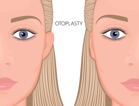 Vector illustration. Otoplasty before and after correction of protruding ears. Close up view. For medicinal publications and advertising of plastic surgery, beauty cosmetic procedures. EPS 10.