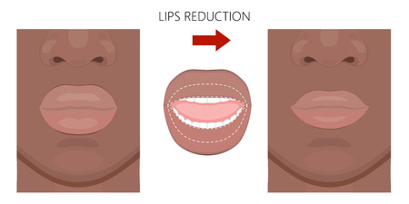 Vector illustration. African American Lips reduction before and after procedure. Close up view. For advertising of medicinal, pharmacy products, cream, lotion, cosmetic and plastic procedures. EPS 10.