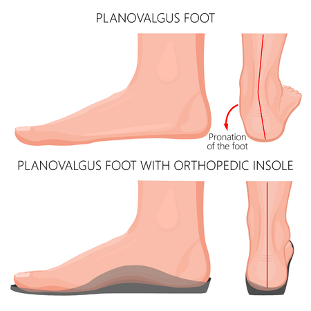 Vector illustration of Flat or planovalgus foot  without and with orthopedic insole. Side (medial) and back views. For advertising and medical publications. EPS 10. Иллюстрация